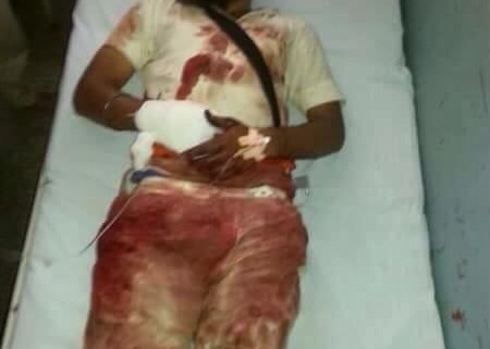 Another  protester beaten brutally by Punjab police